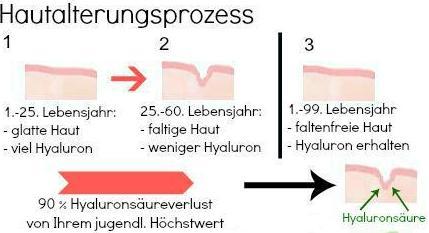 Bildquelle: hyaluronsaeure-kapsel.de