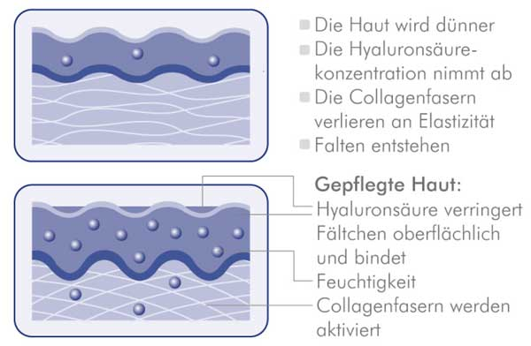 Bildquelle: http://www.dermasence.de/